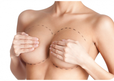 Breast Plastic Surgery